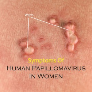 papilloma removal dubai anemia with normal iron levels